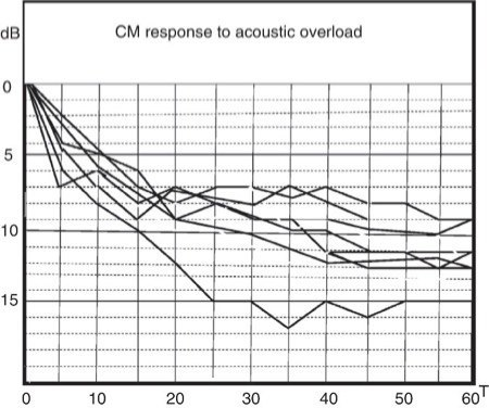 Acoustic overload leading to ear fatigue