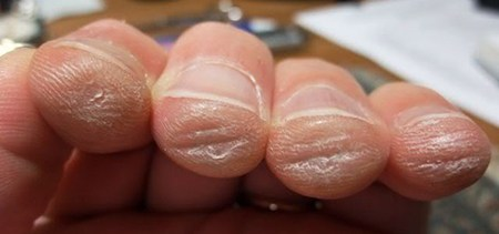 guitarist fingers with calluses