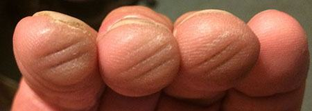the perfect guitar calluses
