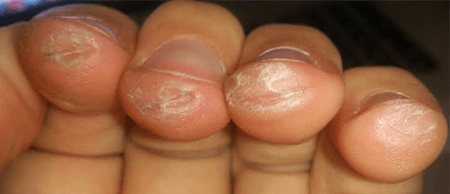 rough guitar callus