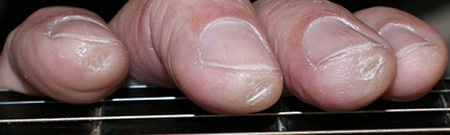 small fingertip calluses